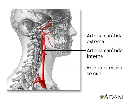 Cirugía de la arteria carótida - Serie